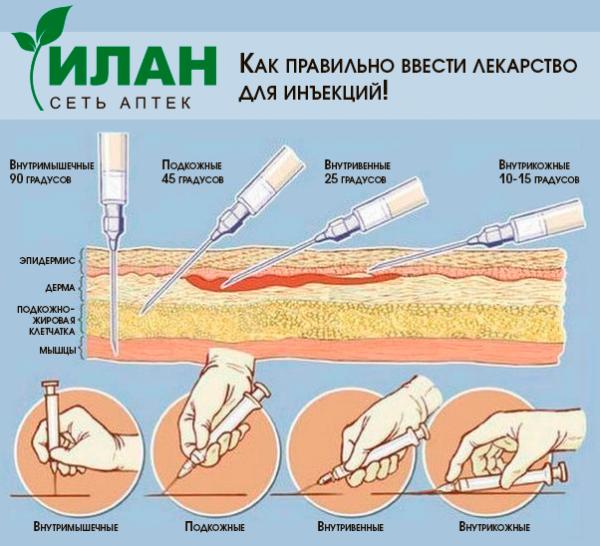Как сделать себе внутривенно укол